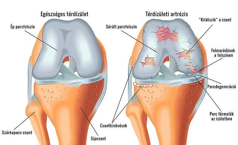 1. és 2. fokú kezelés csukló artrózisa