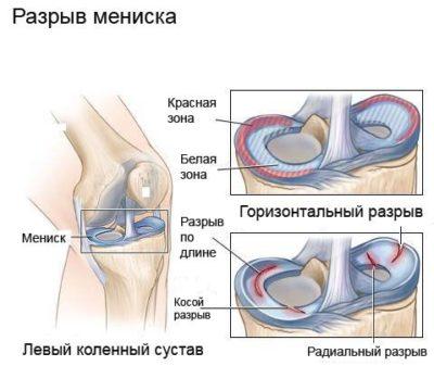ulnar bursitis tünetei és kezelése