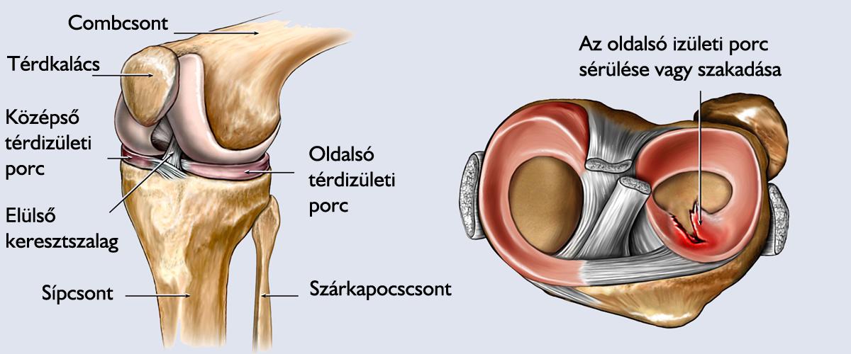 meniszkusz és térd sérülések fájdalom, amely folyamatosan behúzza az ízületeket