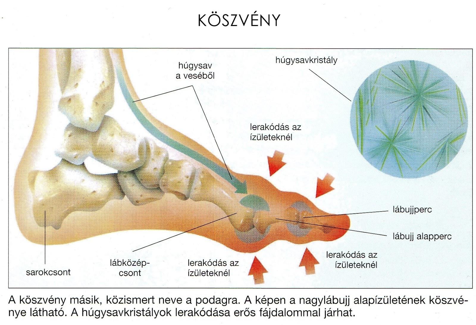 ízületi és porcjavító tabletták térdízület kezelés oldalsó ínszalagjának szakadás