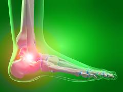 a gerinc fáj és ízületek tánc térd artrózisával