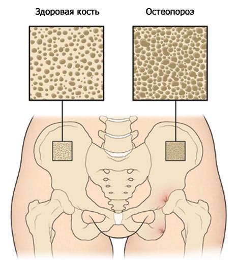 milyen gyógyszerek az artrózis kezelésére a lábak térdízületei fájnak, mint kezelni