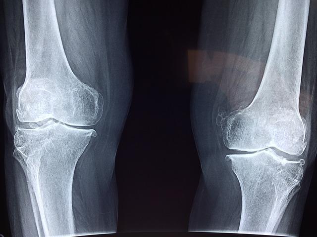 a térd degradáló artrózisa fájdalom a vállízület mellkasának területén