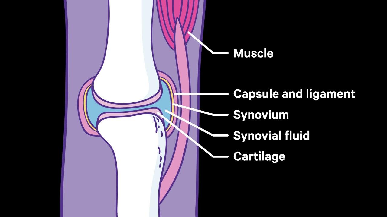 synovitis és bursitis a vállízület kezelésében