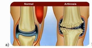 térdrázás artrózissal