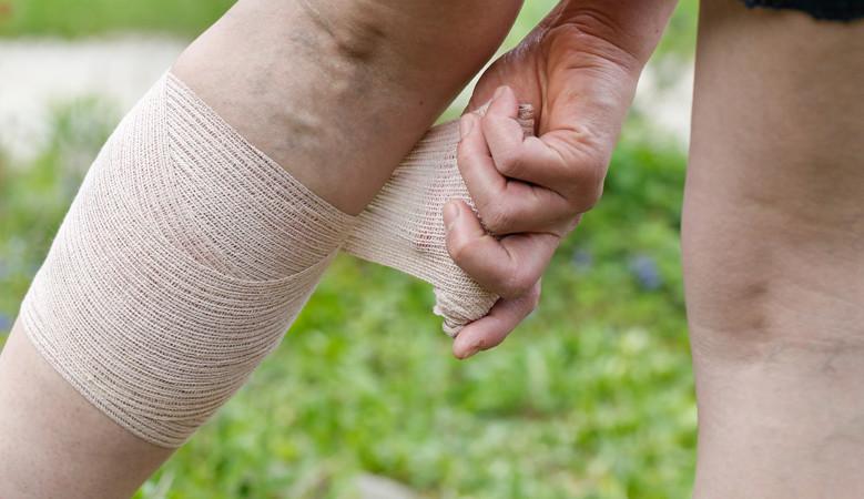 a lábízület fáj, ha séta