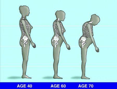 ízületi fájdalom kalcium gyógyszerek térd artritisz