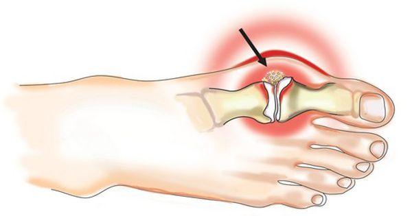 az artrózis tünetei a kereszti keresztirányú ízületben hpv ízületi fájdalom