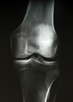 a hüvelykujjízület hirtelen fájdalma lábízületi gyulladások és duzzanat kezelése
