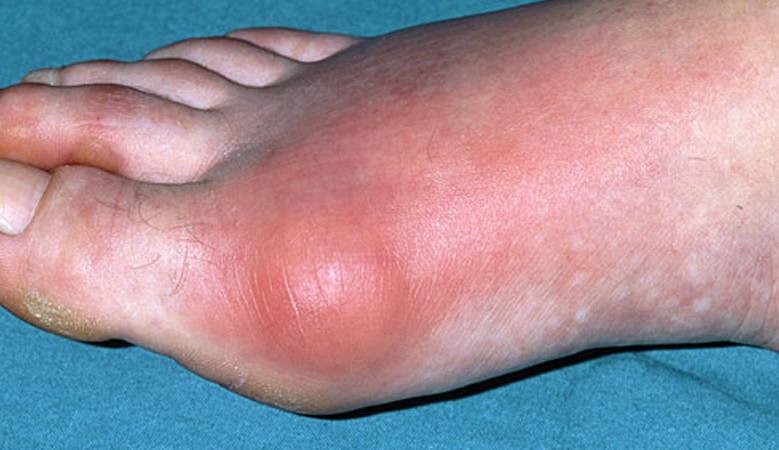 a lábujjak és a kéz ízületi gyulladása
