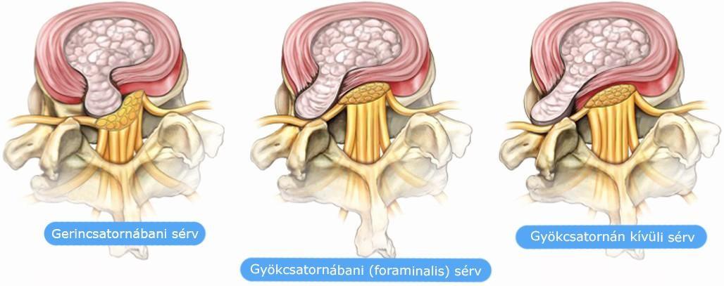 chondoprotektív készítmények a térdízületre a bokaízület deformáló artrózisa 1 fok