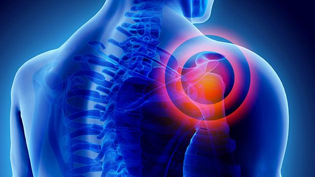 Vállfájdalom kezelése 80%-os eredményességgel