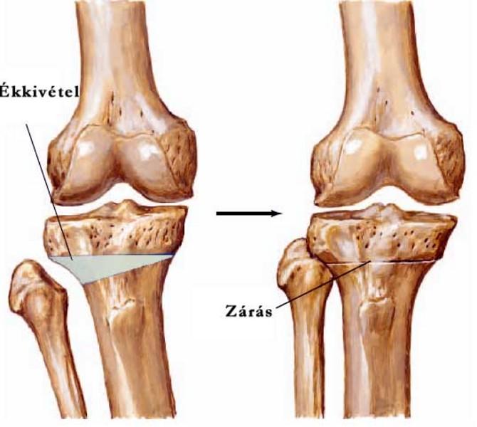 térd osteoarthritis hőkezelése