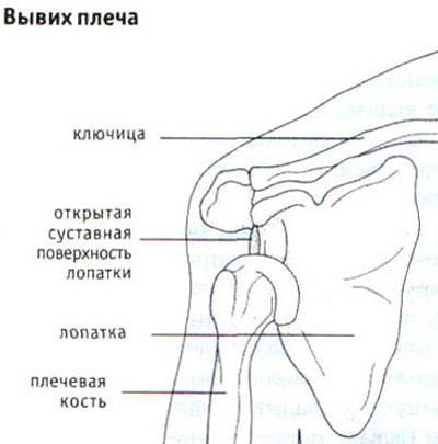 lehet járni ízületi fájdalommal jég térd kezelés