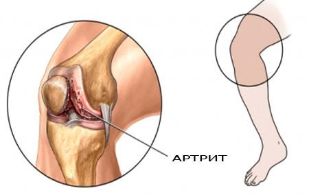 a térdcsont ízületi gyulladása tibeti gyógymód az artrózis kezelése