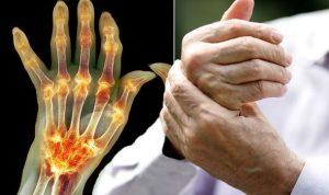 tornaterem ízületi fájdalom térdízület etiológiája