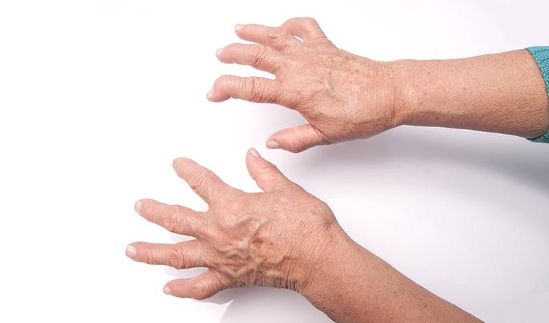 az ujjak ízületeinek rheumatoid arthritis fájdalom a kékben és az ízületekben
