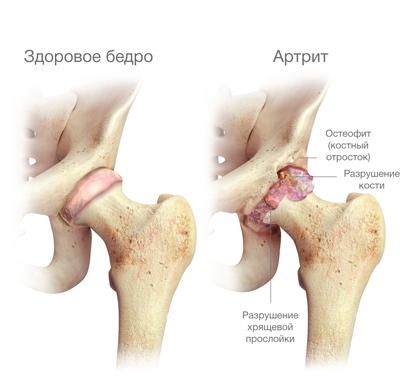 hogyan nyilvánul meg a csípőízület fájdalma