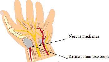 hogyan fejleszteni a térdét egy sérülés után fáj a bal ujj ízülete
