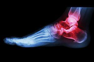miért fáj a bokám alatt ízületi fájdalom kiképzés