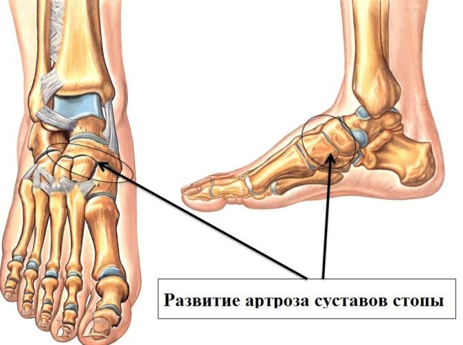 a lábak ízületeinek artrózisa 1 fok