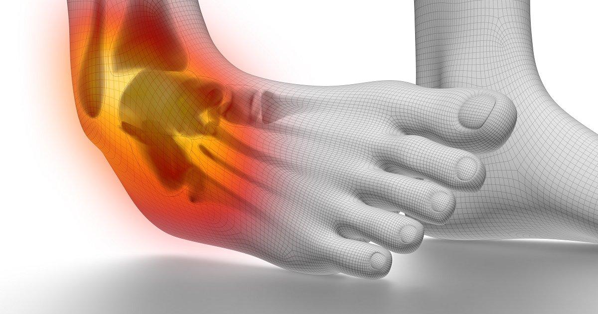 boka fájdalom tünetei
