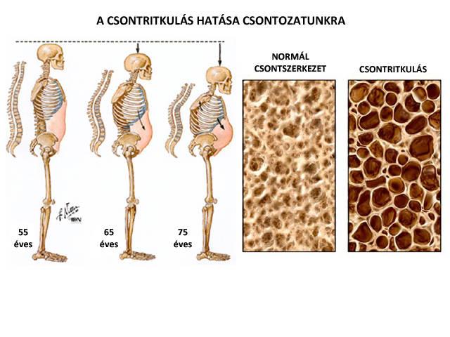 csontritkulásos ágyéki gyógyszerek kezelésre