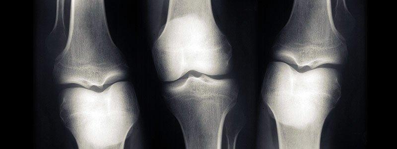 gyógyszerek hátsó csontritkulás kezelésére