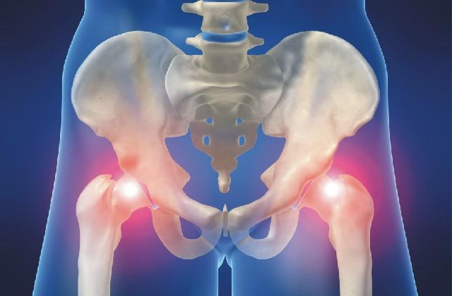csípőzsír-artrózis
