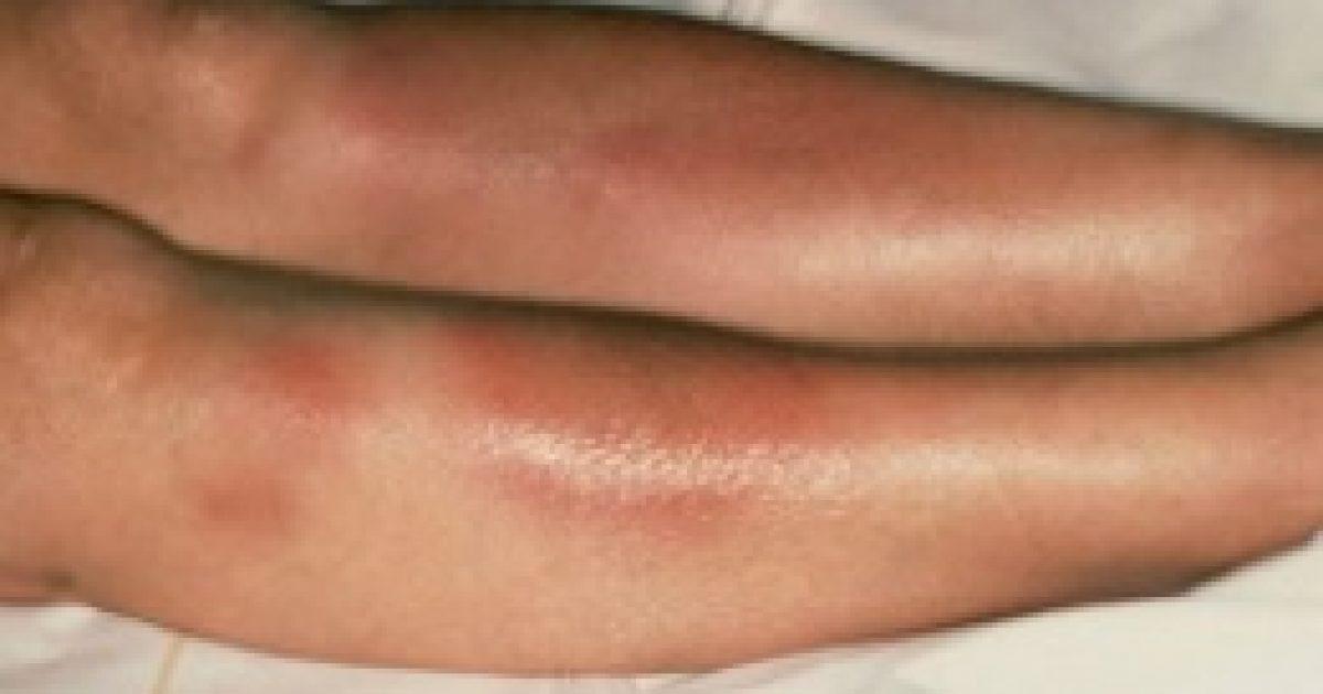 ízületi kezelés a karon a kar ujjízületének gyulladása