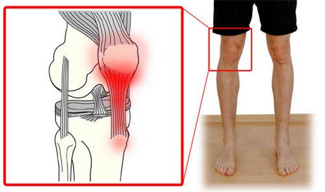 a térdízület deformáló ízületi kezelése 3-4 fokos