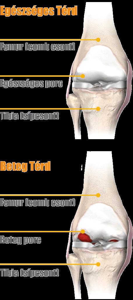dena térd artrózisával a csípő és a csípő károsodása