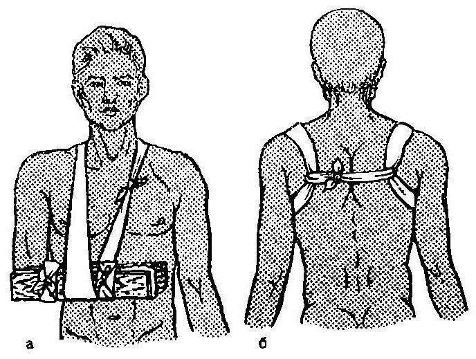 Kezelés kenőcsökkel és népi gyógymódokkal a könyökízület epicondylitisével - Köszvény July
