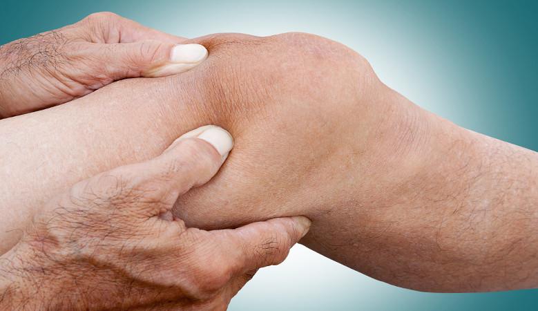 artritisz artrózis otthoni kezelés