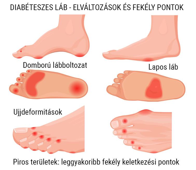 a második fokú kezelés térdének gonarthrosisa csukló sérülés szindróma