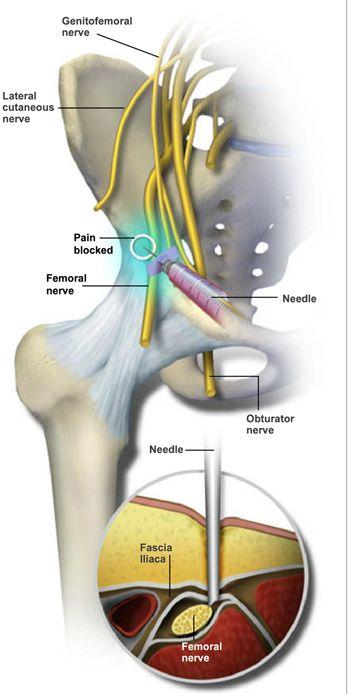 térdtámasz az artrózisban az ujjak ízületei miért fájnak