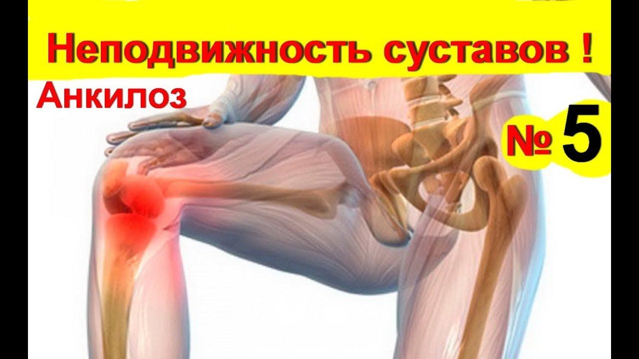 Bokaízületi artrózis - fájdalomportáagnisoma.hu
