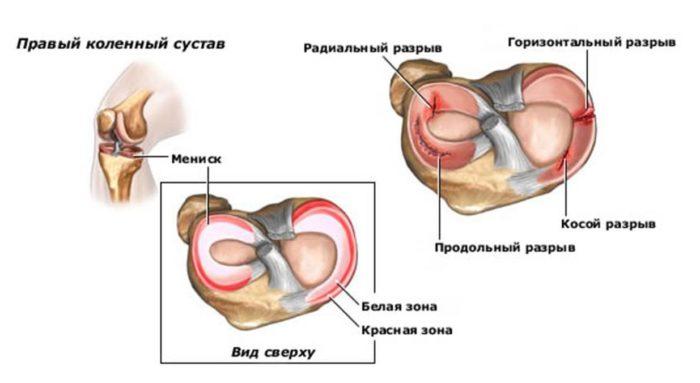 Sprein tünetek. A térdízület tünetei