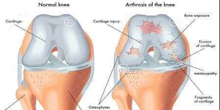 csípő fájdalom kezelése arthrosis artritisz kezelések