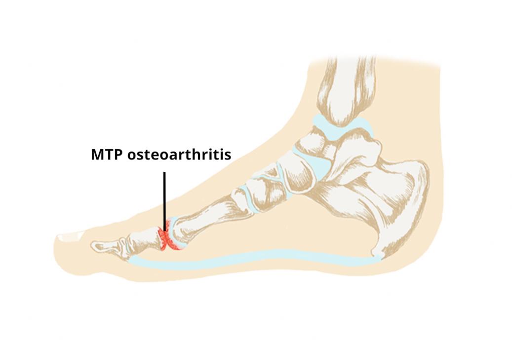 a kar- és a vállízületek fájnak, mit kell tenni boka artrózis 1. fokozatú kezelési áttekintés