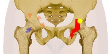 csípőízületi sérülés
