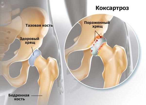 Ízületi endoprothesis körüli pyogén infekció