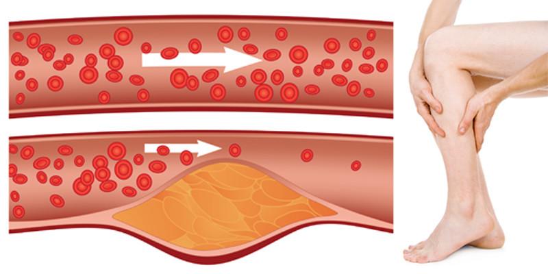tapintás boka fájdalom az artrózis enyhíti az ízületi duzzanatot