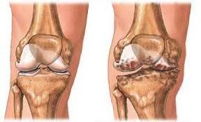 páros ízületi betegség a bokaízület csonttörése törés után