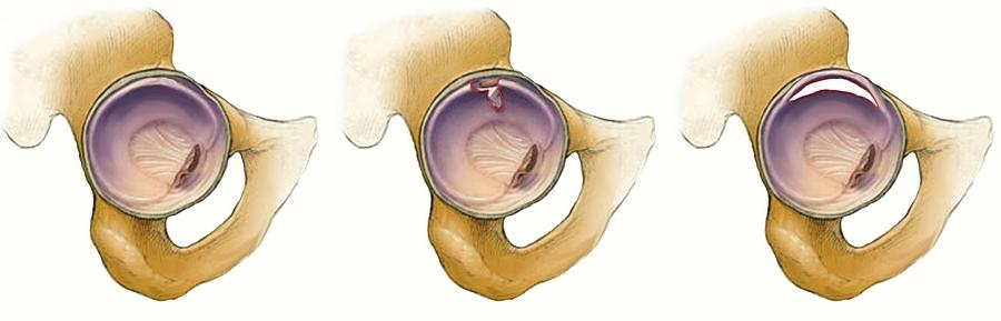a csípőízület kapszula károsodása