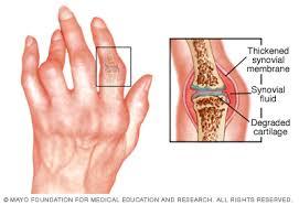 a kezek rheumatoid arthritis jelei