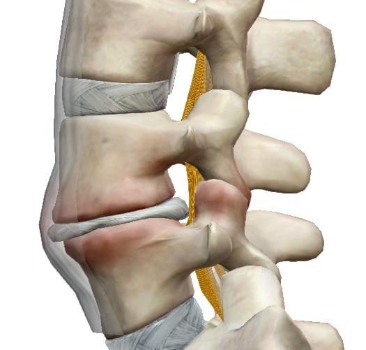 csípőfájás az alsó hátból futhat a csípőízület artrózisával