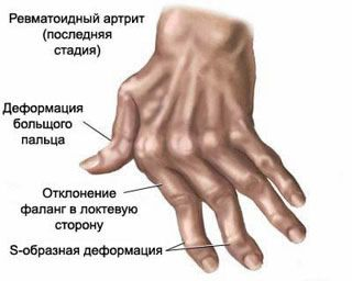 miért fáj a kar ízülete új gyógyszerek a lábak ízületeinek fájdalmához