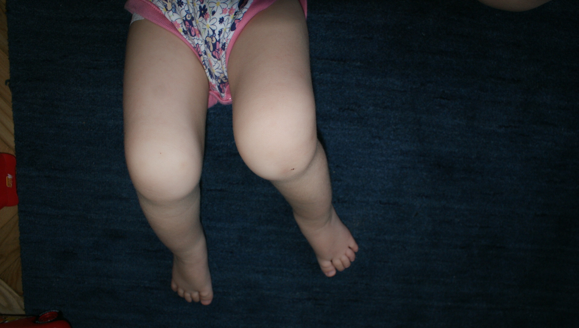A gyermekkori krónikus ízületi gyulladás kezelése