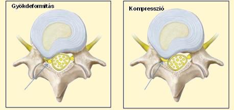 lüktető fájdalom a nagy lábujj ízületében ketorol ízületi fájdalmak kezelésére